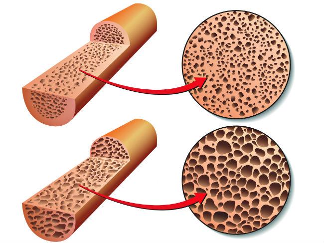 osta-kokkala-osteoporosis